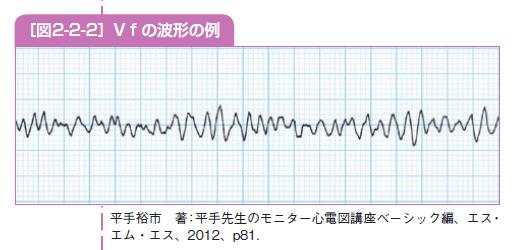 Vfの波形の例