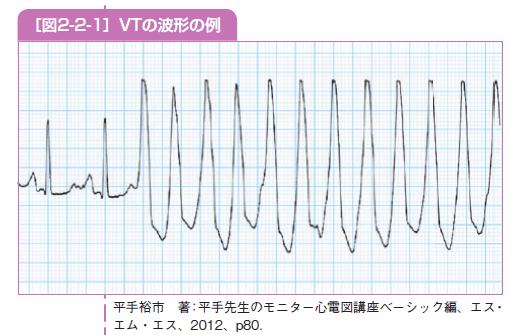 VTの波形の例