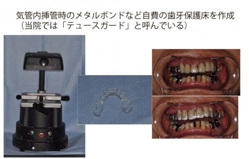気管内挿管時のメタルボンドなど自費の歯牙保護床を作成、実際の写真