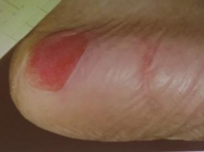 踵の褥瘡、実際の写真