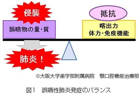 誤嚥性肺炎発症のバランス説明図