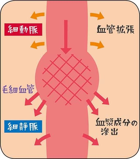 急性炎症時の微小循環解説図