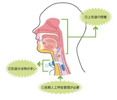 気管切開の適応