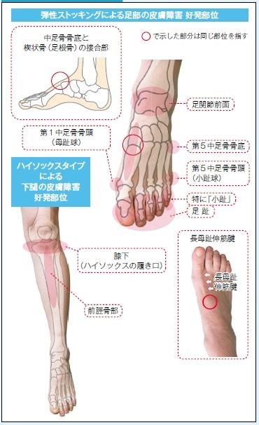 弾性ストッキングによる足部の皮膚障害 好発部位