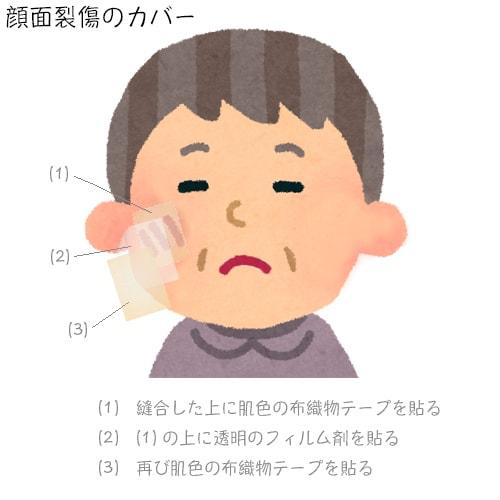 顔面裂傷のカバー