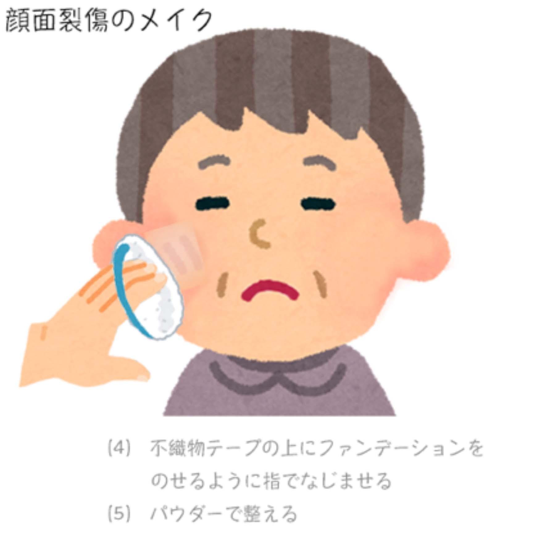 顔面裂傷のメイク