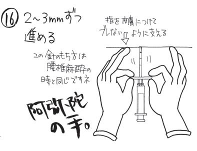 硬膜外麻酔 穿刺の手順