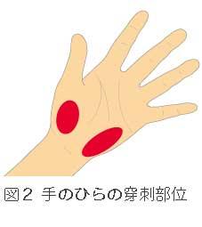 手のひらの穿刺部位