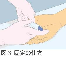 図3固定の仕方