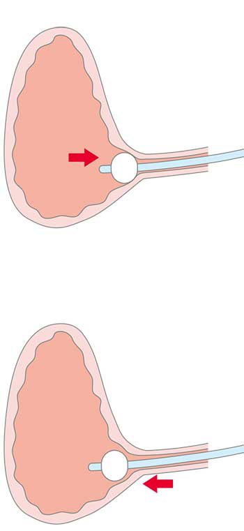 導尿バルーン流れ2