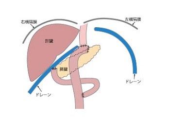 胃全摘術後のドレーンの留置位置2