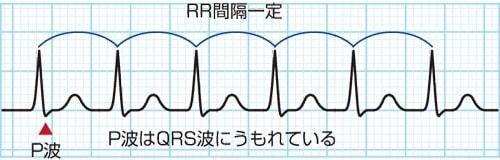 房室結節リエントリー性頻拍(AVNRT)の波形