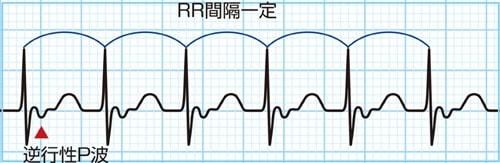 房室リエントリー性頻拍(AVRT)の波形