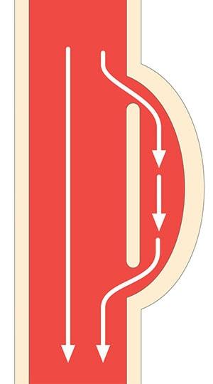 大動脈解離の模式図