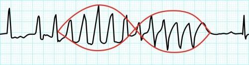 トルサード・ド・ポアンツの波形図