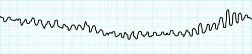 心室細動の波形
