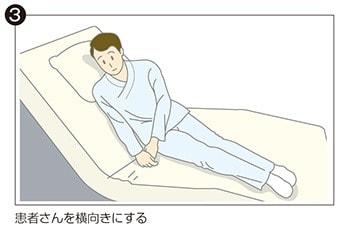 イラスト③:患者さんを横向きにする。