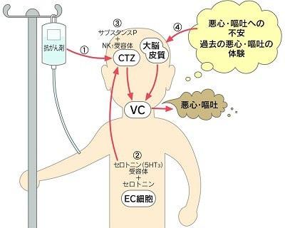 副作用が生じるメカニズムのイラスト図