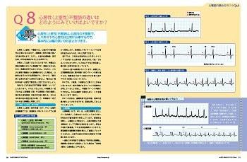 心電図の読み方のコツQ&Aの特集1ページ