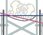 座面のたわみによる傾きのイラスト図