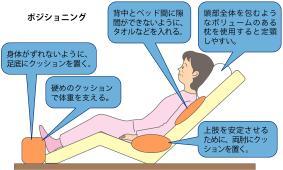 ベッドでのポジショニングのイラスト図