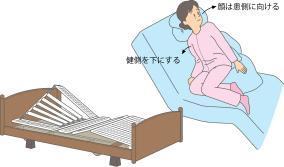 片麻痺がある患者さんのポジショニングのイラスト図