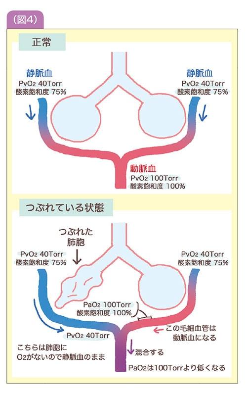 詳細説明図