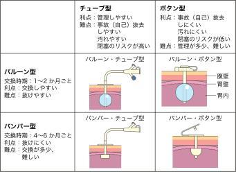 PEGカテーテルの種類別の図