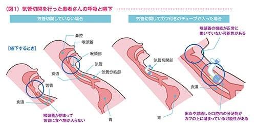 気管切開術を行った患者さんの呼吸と嚥下の図
