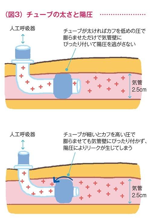 チューブの太さと陽圧の図