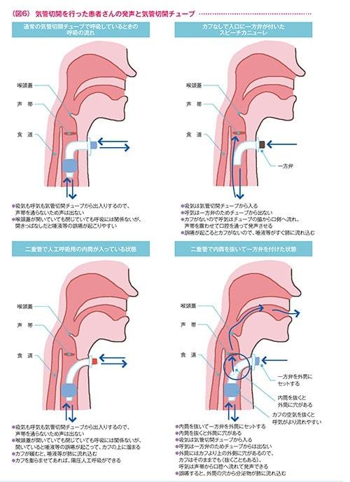 切開 術 気管