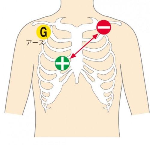 心電図計の感度斜め