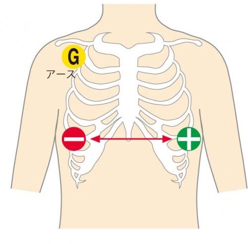 心電図計の感度平行