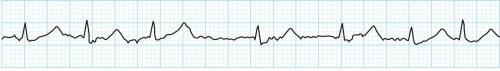 モニター心電図の波形