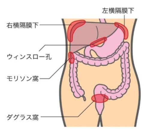 腹腔ドレーンの挿入部位の図