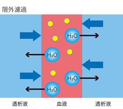 限外濾過の説明図