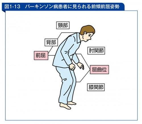 パーキンソン病患者に見られる前傾前屈姿勢の図