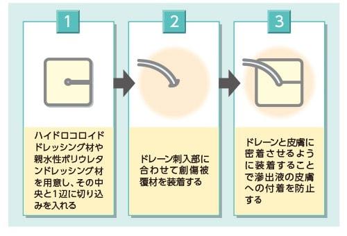 創傷被覆材による滲出液付着防止のやり方
