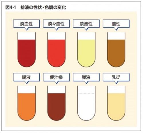 排液の性状・色調の変化の図