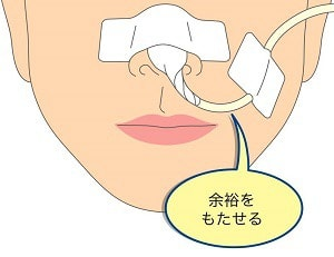栄養 経 管 鼻 チューブ 経