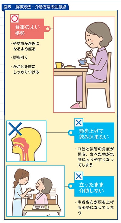 食事方法・介護方法の注意点