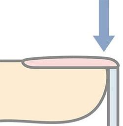 爪の下からストローゾンデをあてている図