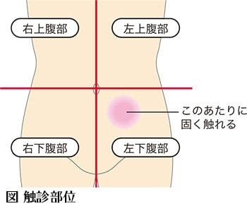腹部のアセスメント_触診部位