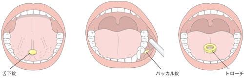 口腔内薬の投与方法