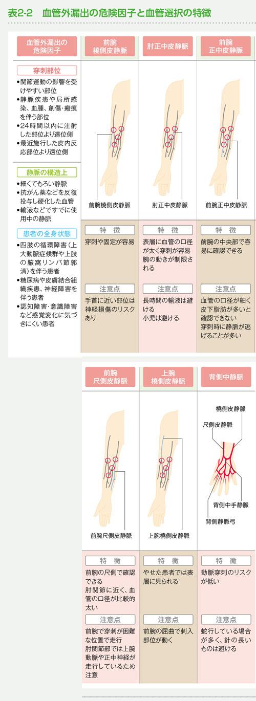 血管外漏出の危険因子と血管選択の特徴