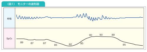 モニターの波形
