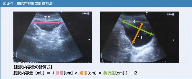 膀胱内容量の計算方法