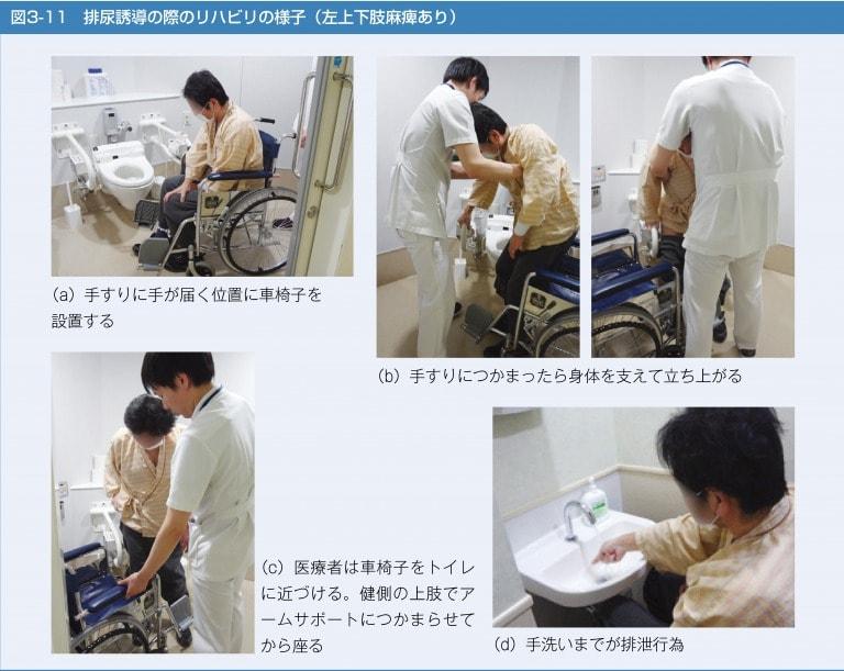 排尿誘導の際のリハビリの様子(左上下肢麻痺あり)