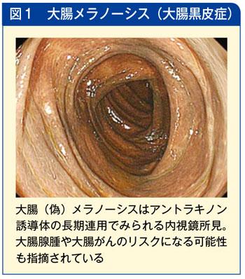大腸メラノーシス