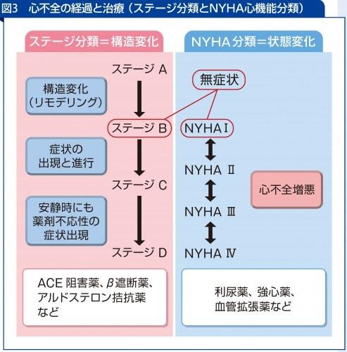 心不全の経過と治療( ステージ分類とNYHA心機能分類)